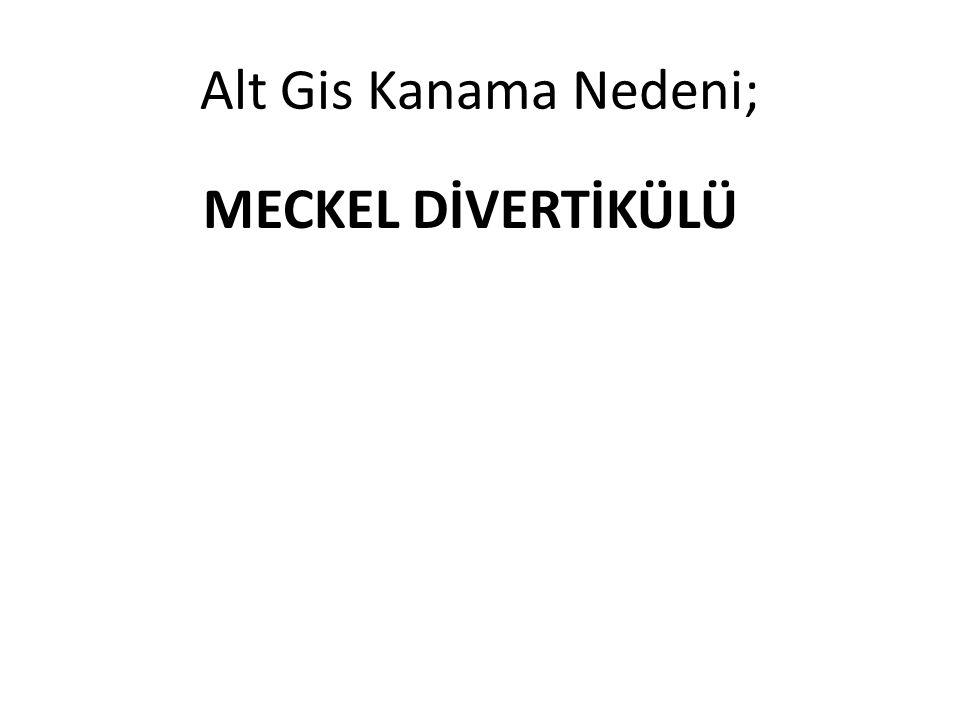 Alt Gis Kanama Nedeni; MECKEL DİVERTİKÜLÜ