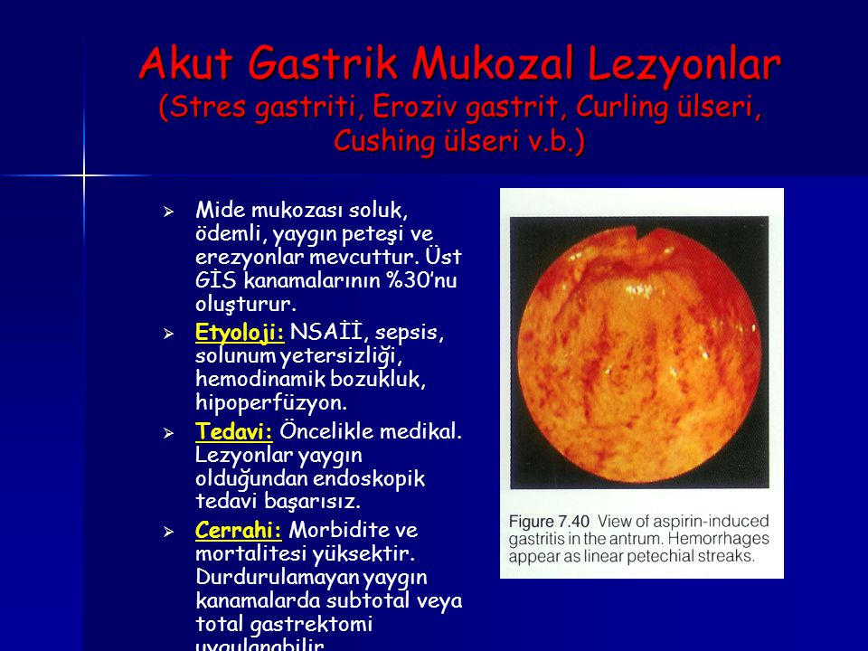 Akut Gastrik Mukozal Lezyonlar (Stres gastriti, Eroziv gastrit, Curling ülseri, Cushing ülseri v.b.)