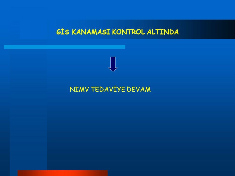 GİS KANAMASI KONTROL ALTINDA