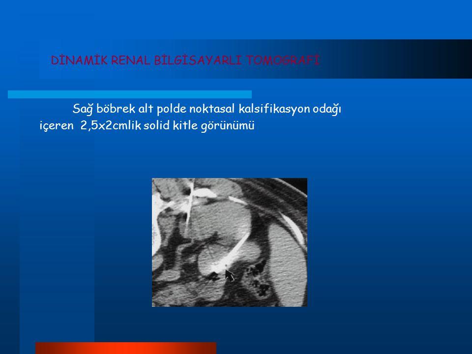 DİNAMİK RENAL BİLGİSAYARLI TOMOGRAFİ