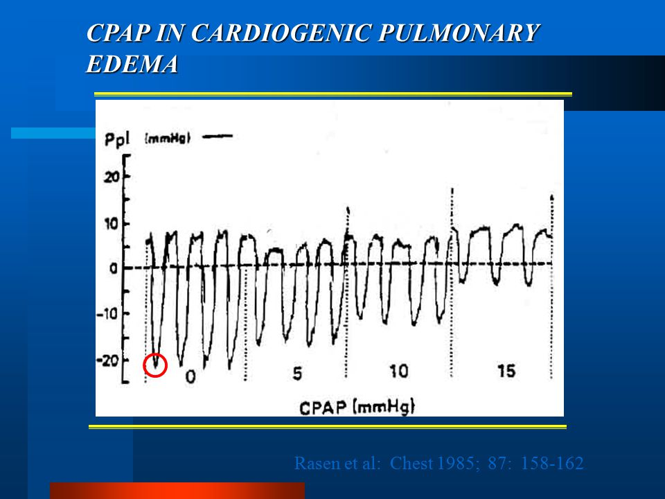 CPAP IN CARDIOGENIC PULMONARY EDEMA