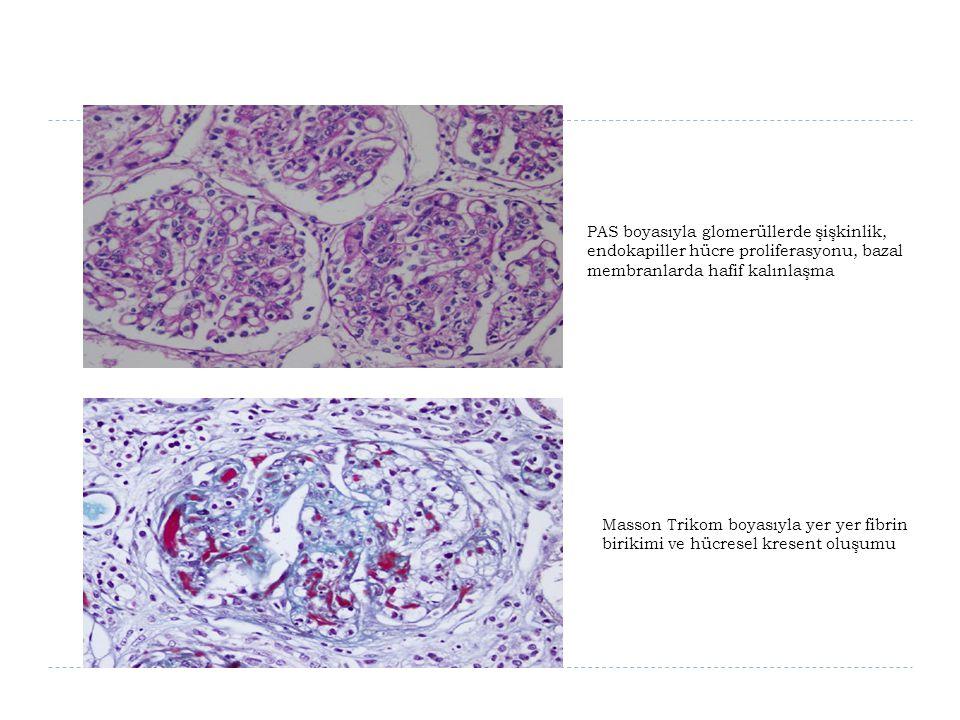 PAS boyasıyla glomerüllerde şişkinlik, endokapiller hücre proliferasyonu, bazal membranlarda hafif kalınlaşma