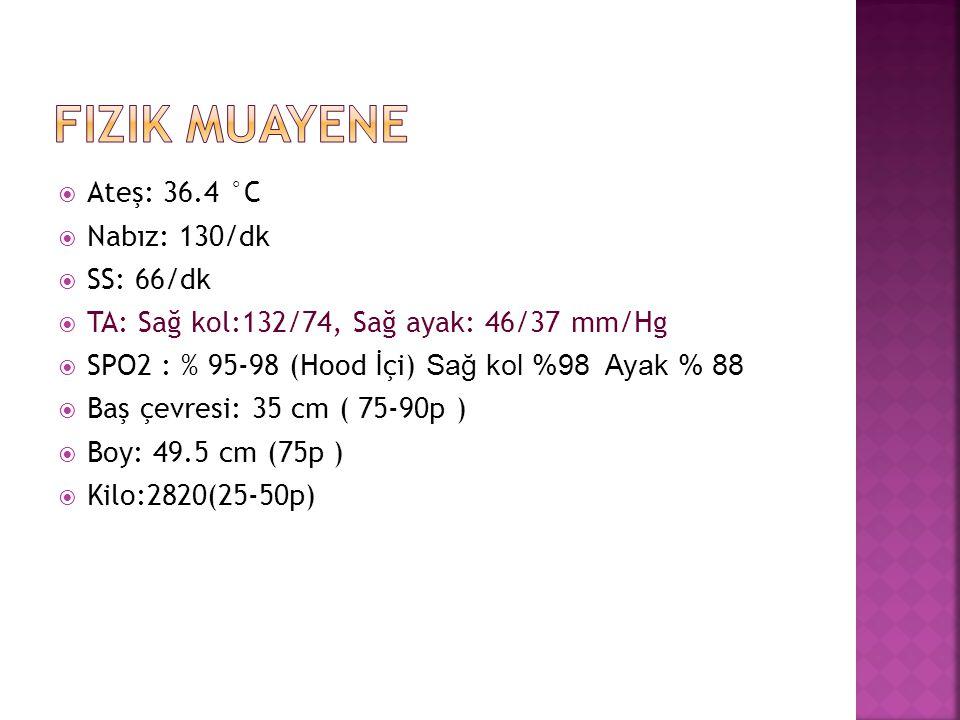 Fizik muayene Ateş: 36.4 °C Nabız: 130/dk SS: 66/dk