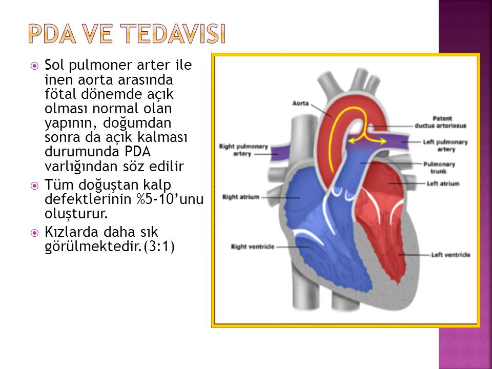 PDA ve TEdavisi