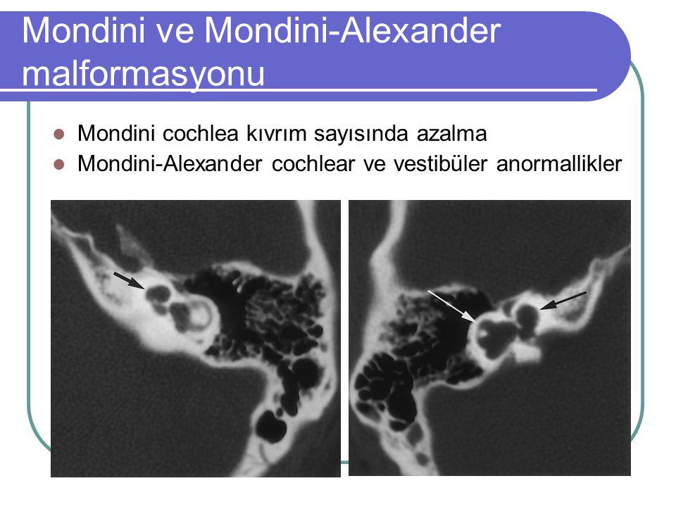 Mondini ve Mondini-Alexander malformasyonu