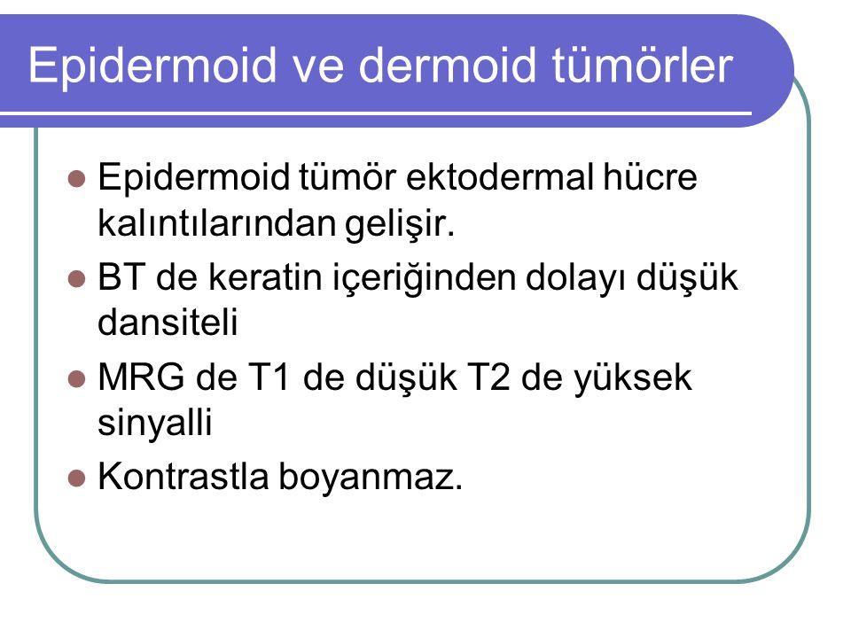 Epidermoid ve dermoid tümörler