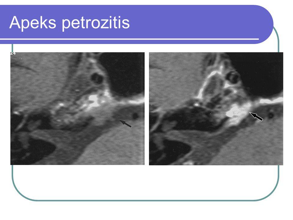 Apeks petrozitis