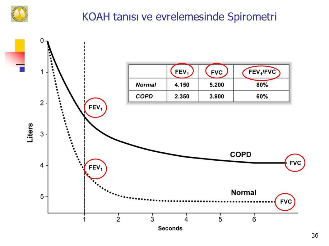 KOAH tanısı ve evrelemesinde Spirometri