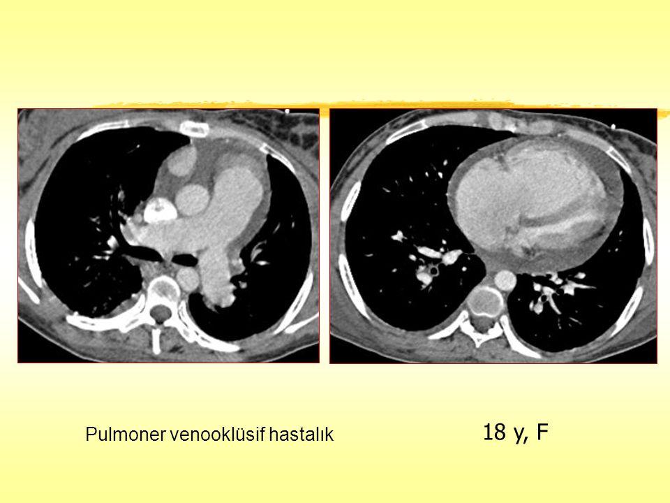 18 y, F Pulmoner venooklüsif hastalık