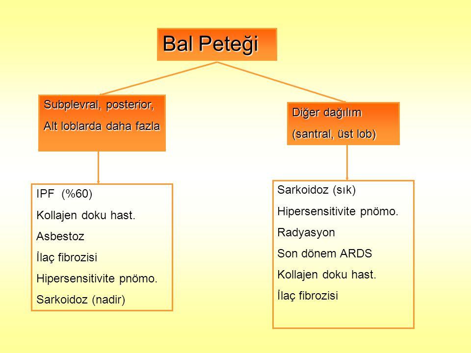 Bal Peteği Subplevral, posterior, Alt loblarda daha fazla