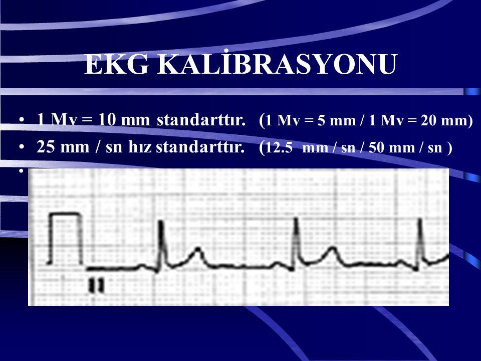 EKG KALİBRASYONU 1 Mv = 10 mm standarttır.
