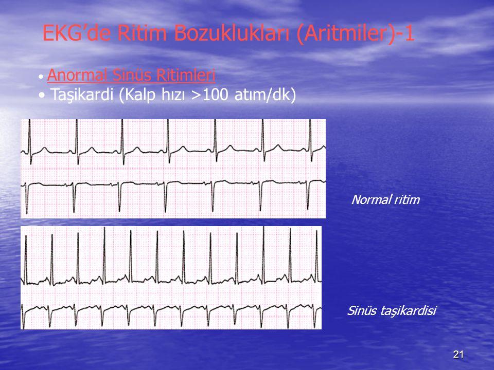 EKG'de Ritim Bozuklukları (Aritmiler)-1