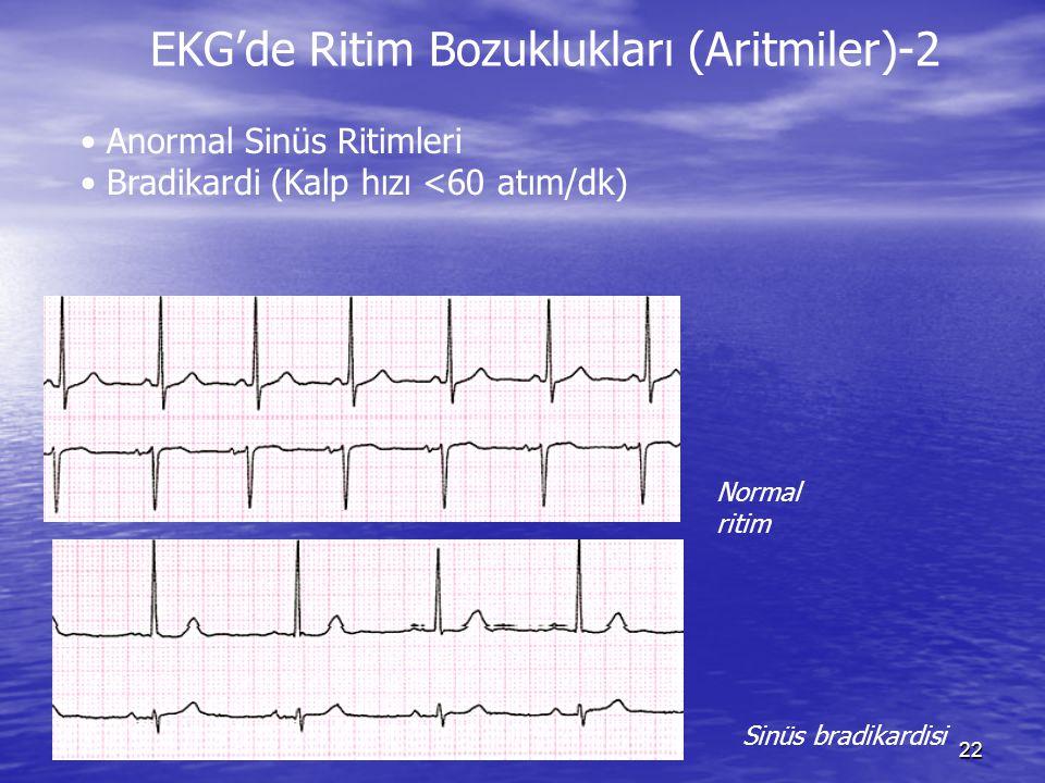 EKG'de Ritim Bozuklukları (Aritmiler)-2