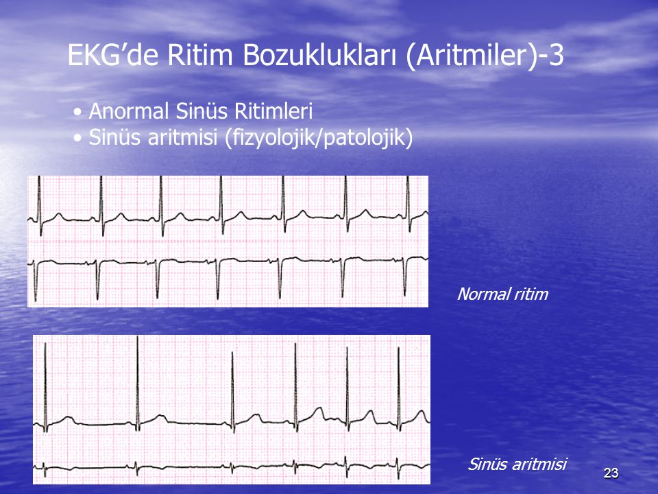 EKG'de Ritim Bozuklukları (Aritmiler)-3