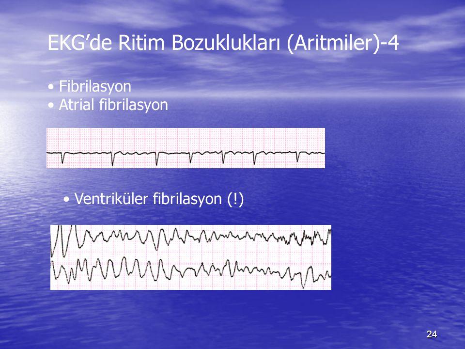 EKG'de Ritim Bozuklukları (Aritmiler)-4
