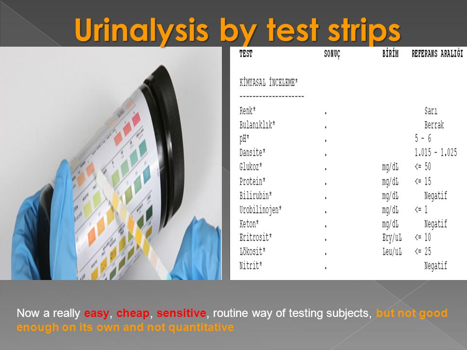 Urinalysis by test strips