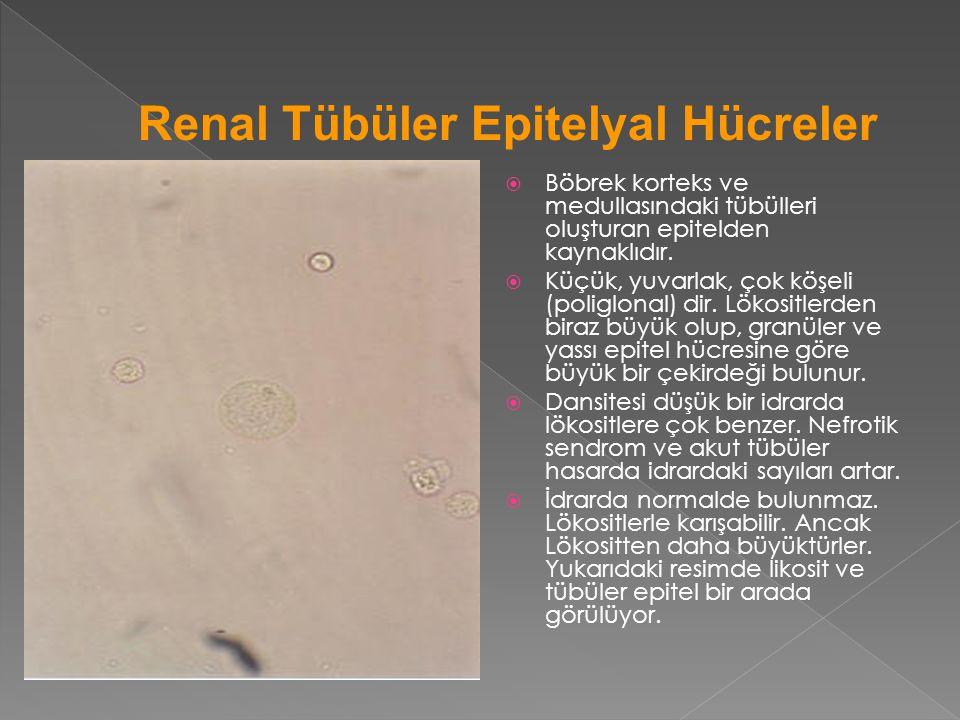 Renal Tübüler Epitelyal Hücreler