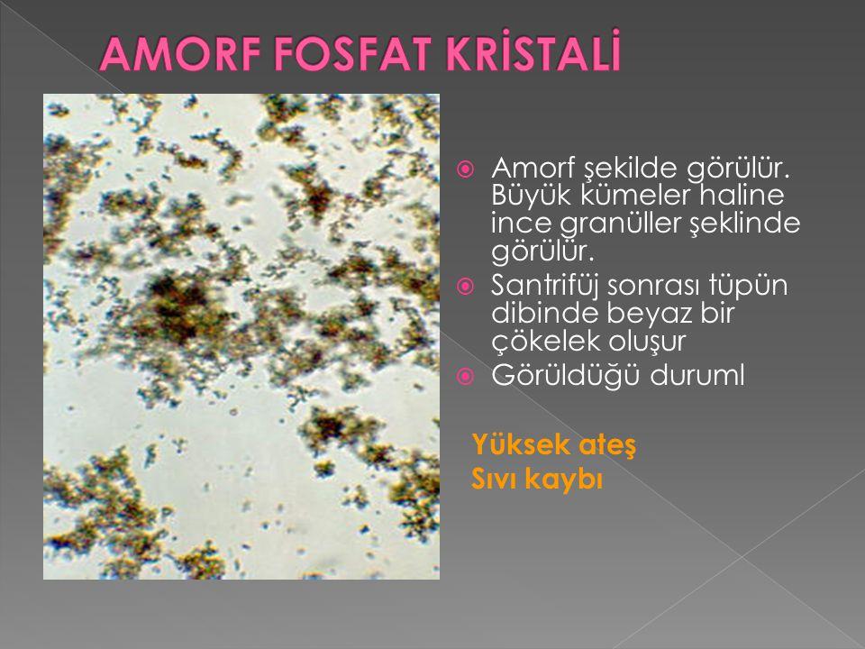 AMORF FOSFAT KRİSTALİ Amorf şekilde görülür. Büyük kümeler haline ince granüller şeklinde görülür.