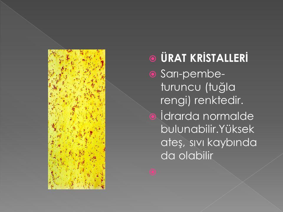 ÜRAT KRİSTALLERİ Sarı-pembe- turuncu (tuğla rengi) renktedir. İdrarda normalde bulunabilir.Yüksek ateş, sıvı kaybında da olabilir.