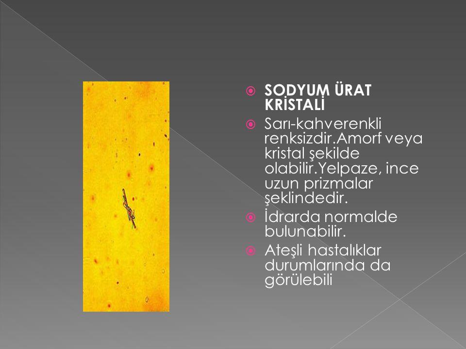 SODYUM ÜRAT KRİSTALİ Sarı-kahverenkli renksizdir.Amorf veya kristal şekilde olabilir.Yelpaze, ince uzun prizmalar şeklindedir.
