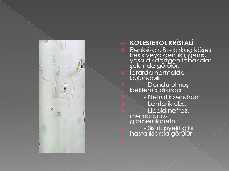 KOLESTEROL KRİSTALİ Renksizdir. Bir- birkaç köşesi kesik veya çentikli, geniş, yassı dikdörtgen tabakalar şeklinde görülür.