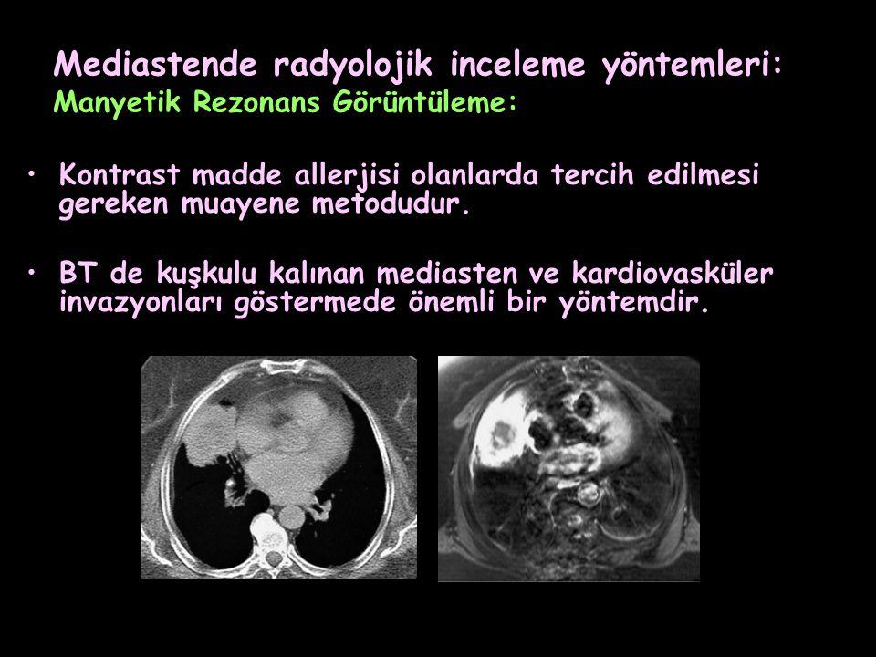 Mediastende radyolojik inceleme yöntemleri: Manyetik Rezonans Görüntüleme: