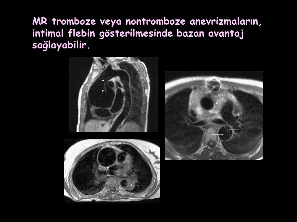 MR tromboze veya nontromboze anevrizmaların, intimal flebin gösterilmesinde bazan avantaj sağlayabilir.
