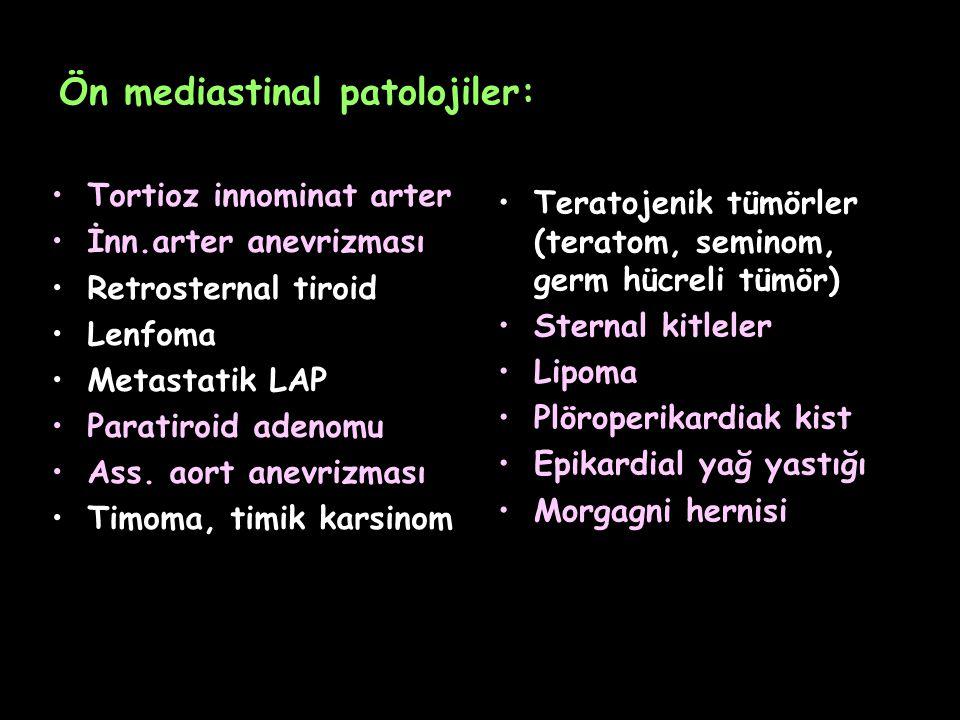 Ön mediastinal patolojiler: