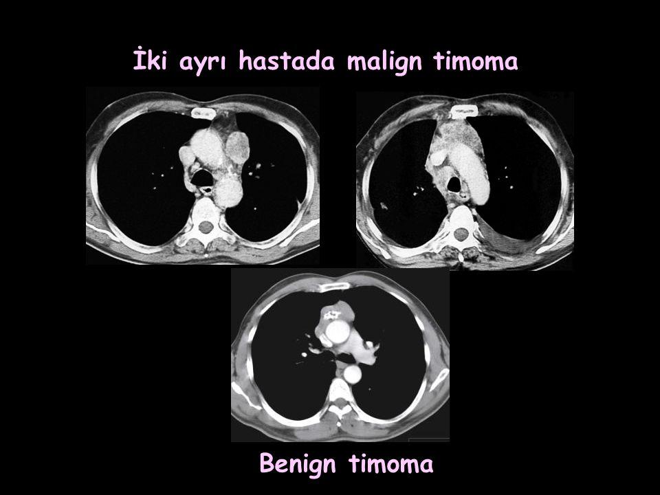 İki ayrı hastada malign timoma
