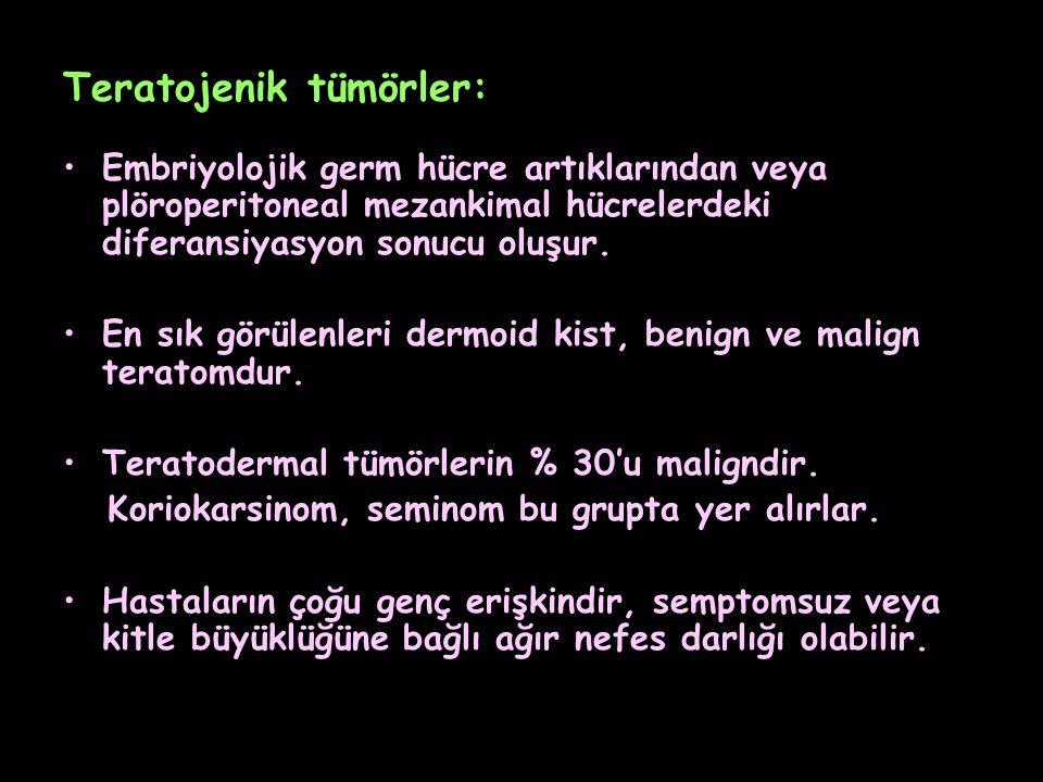 Teratojenik tümörler: