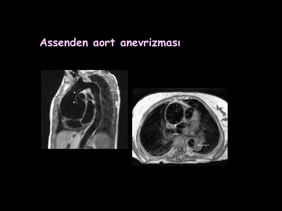 Assenden aort anevrizması
