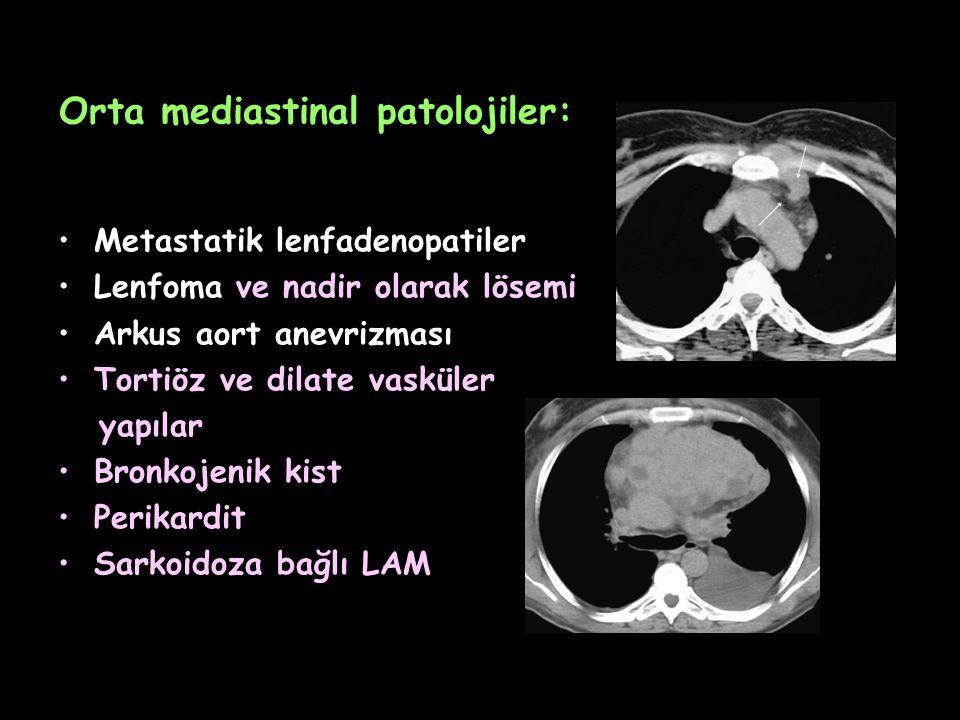 Orta mediastinal patolojiler: