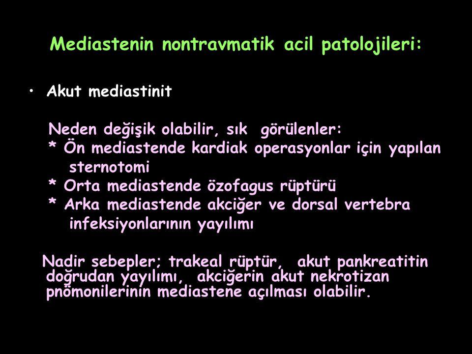 Mediastenin nontravmatik acil patolojileri: