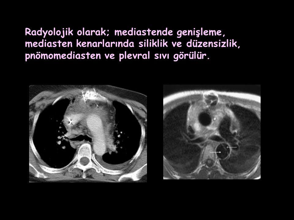 Radyolojik olarak; mediastende genişleme,