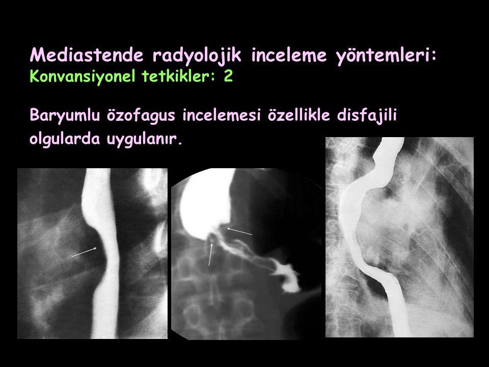 Mediastende radyolojik inceleme yöntemleri: Konvansiyonel tetkikler: 2