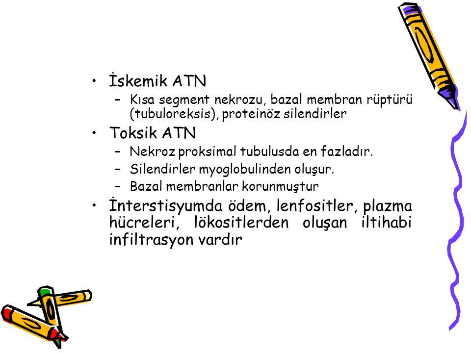 İskemik ATN Kısa segment nekrozu, bazal membran rüptürü (tubuloreksis), proteinöz silendirler. Toksik ATN.