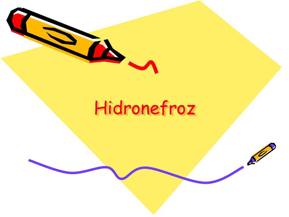 Hidronefroz