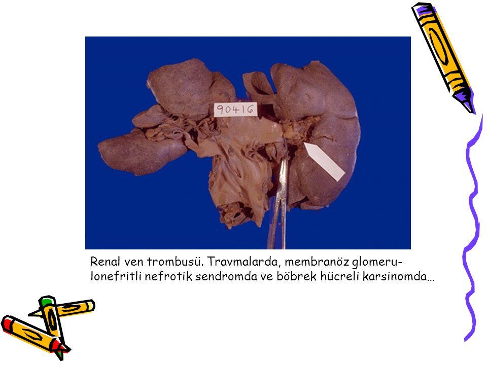 Renal ven trombusü. Travmalarda, membranöz glomeru-