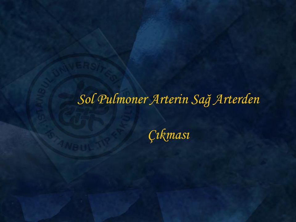 Sol Pulmoner Arterin Sağ Arterden