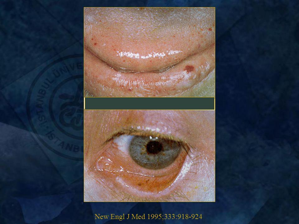 New Engl J Med 1995;333:918-924