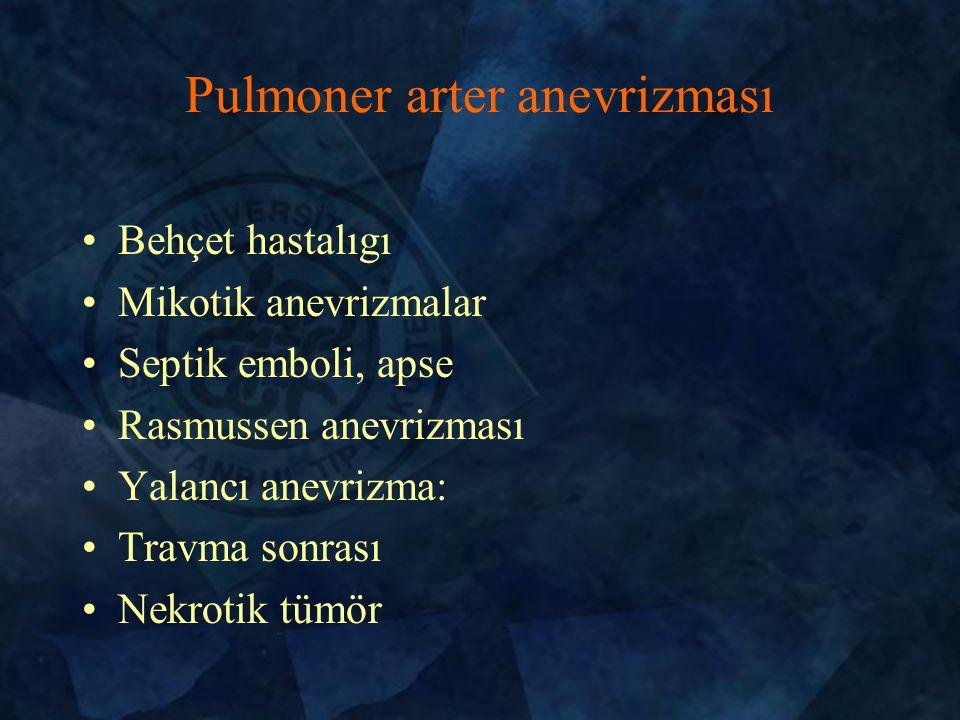 Pulmoner arter anevrizması