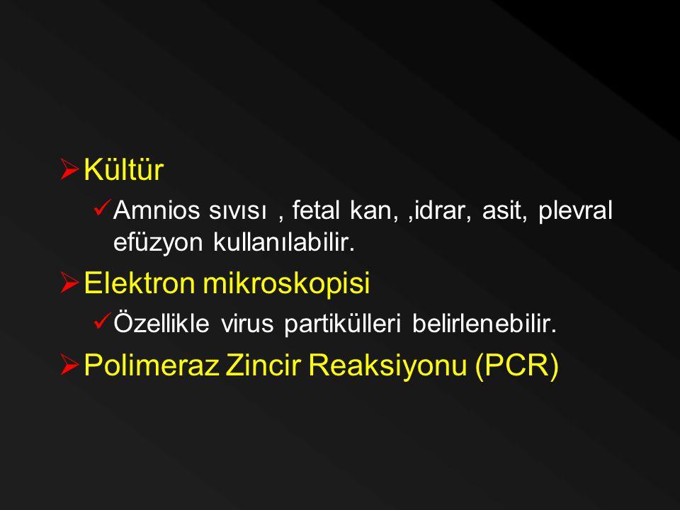 Elektron mikroskopisi Polimeraz Zincir Reaksiyonu (PCR)