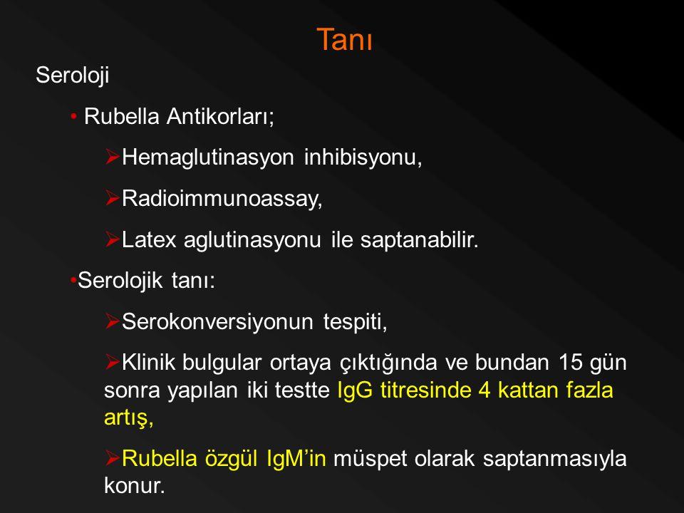 Tanı Seroloji Rubella Antikorları; Hemaglutinasyon inhibisyonu,