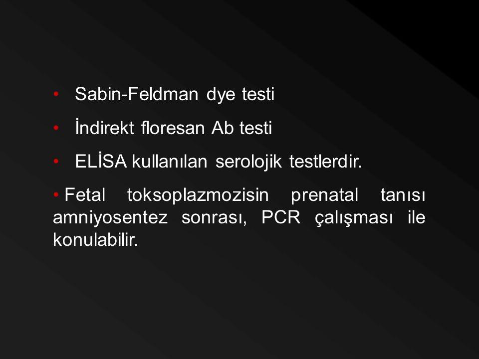 Sabin-Feldman dye testi