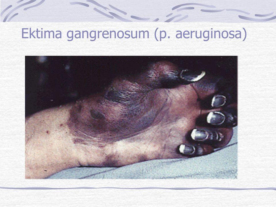 Ektima gangrenosum (p. aeruginosa)