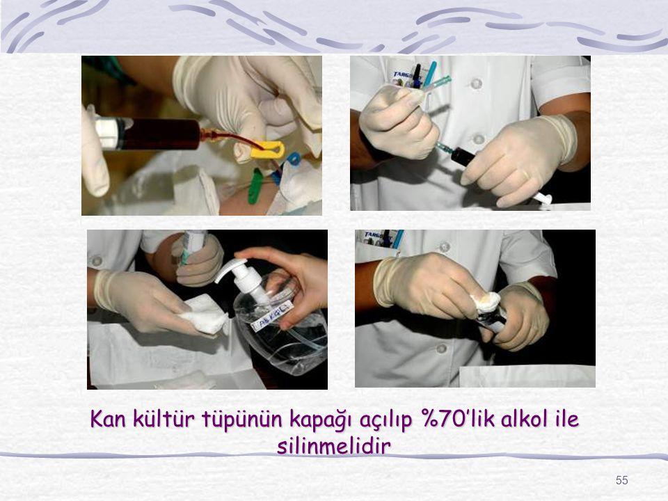 Kan kültür tüpünün kapağı açılıp %70'lik alkol ile silinmelidir