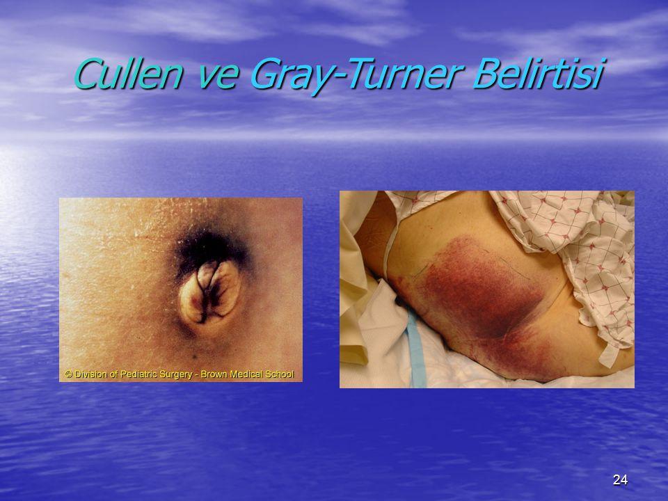 Cullen ve Gray-Turner Belirtisi