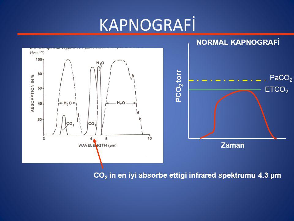 KAPNOGRAFİ NORMAL KAPNOGRAFİ PaCO2 PCO2 torr ETCO2 Zaman