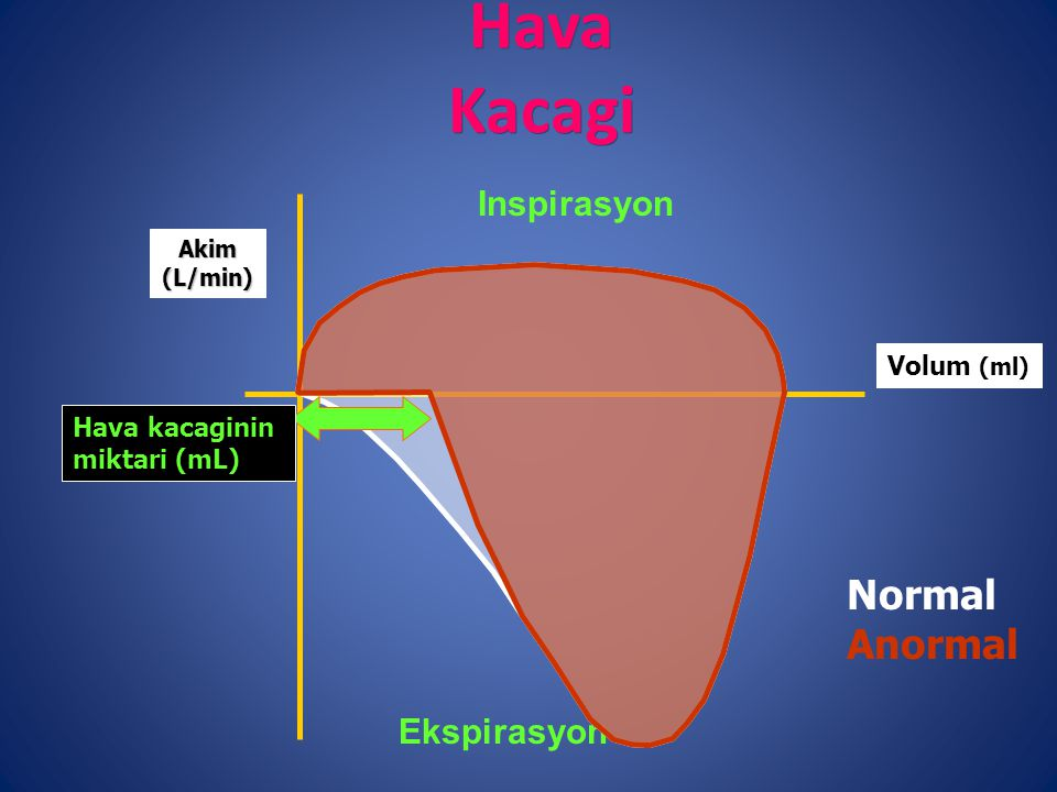 Hava Kacagi Normal Anormal Inspirasyon Ekspirasyon Volum (ml)