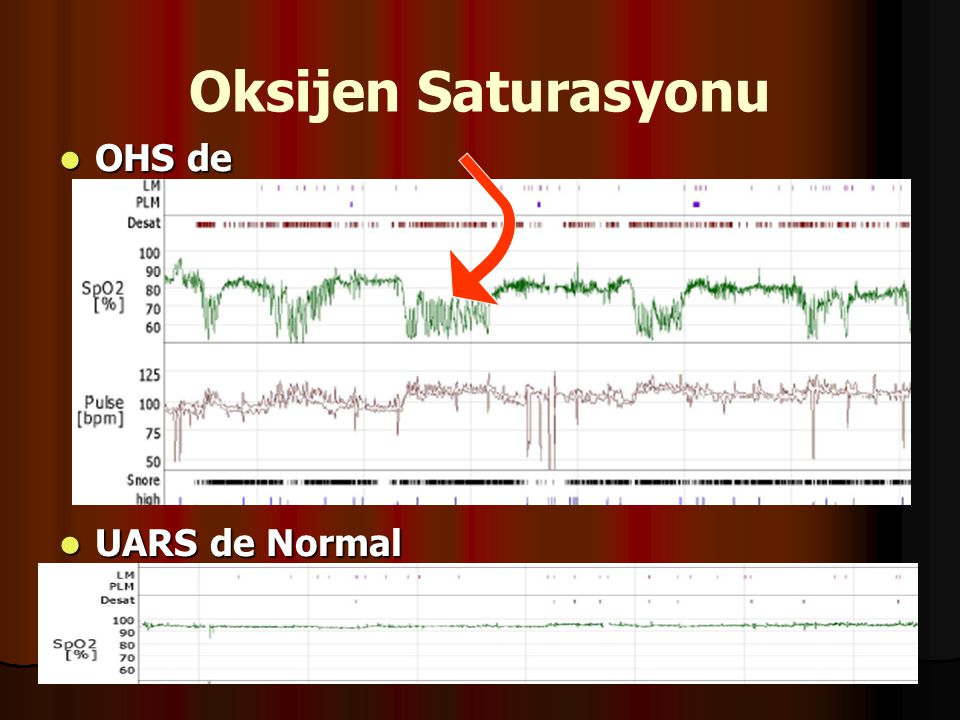 Oksijen Saturasyonu OHS de Çanaklaşma UARS de Normal